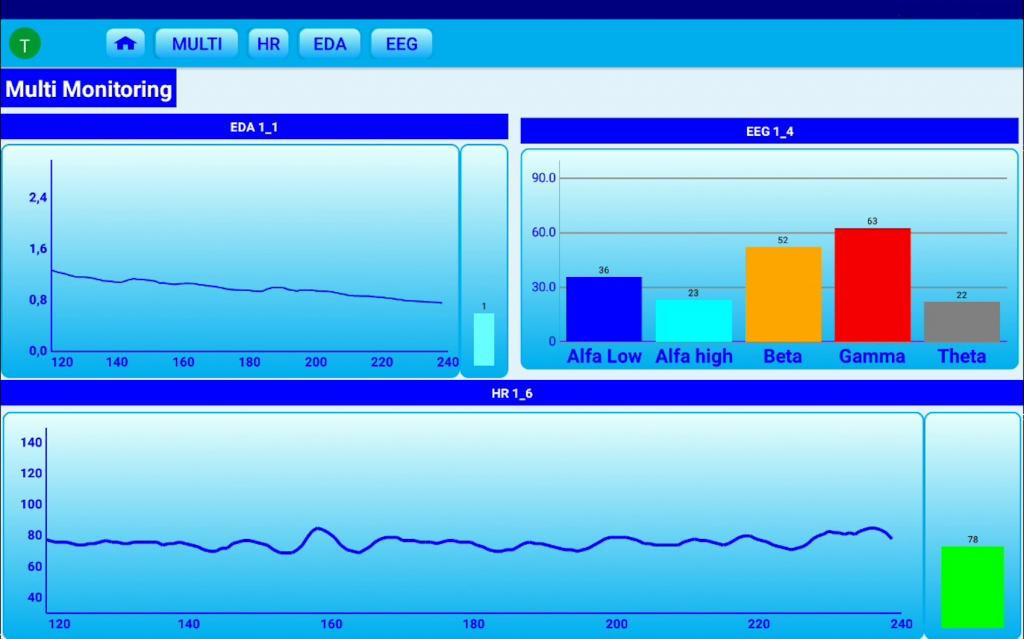 Il software dopo l'elaborazione dei segnali mostra una visualizzazione chiara dei risultati anche in tempo reale